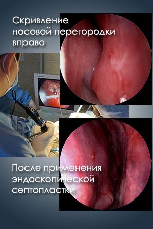 Результат операции по исправлению перегородки носа
