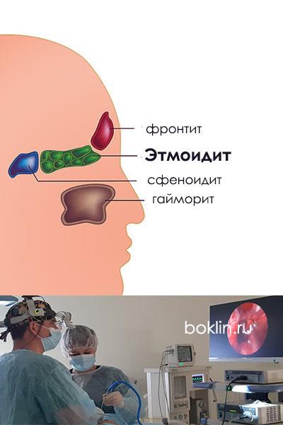 Этмоидит (этмоидальный синусит)