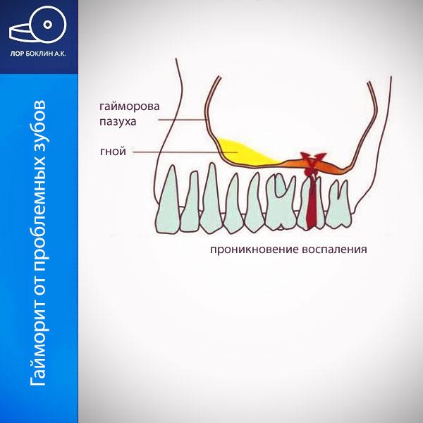 Одонтогенный синусит или гайморит от проблемных зубов