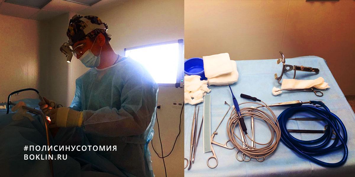 Полисинусотомия или операция на околоносовых пазухах