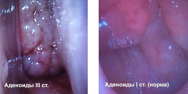 аденоиды норма и патология