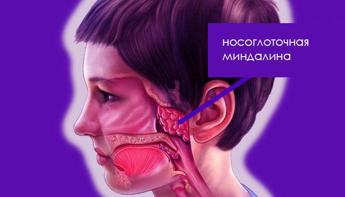 носоглоточная миндалина (аденоиды) - расположение