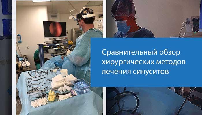 лечение синусита - обзор хирургических методов