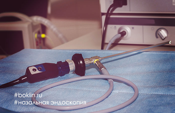 Назальная эндоскопия